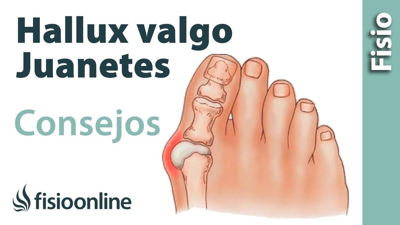 Hallux Valgus o juanete - Consejos y tratamiento con ...