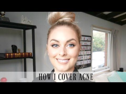 HOW I COVER ACNE CHIT CHAT | Holly Carran