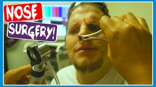 😨PREPARING FOR NOSE SURGERY!😨 (DAY 661)