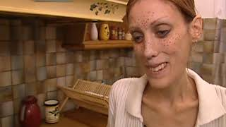 Anorexie, Boulimie Le Droit De Savoir
