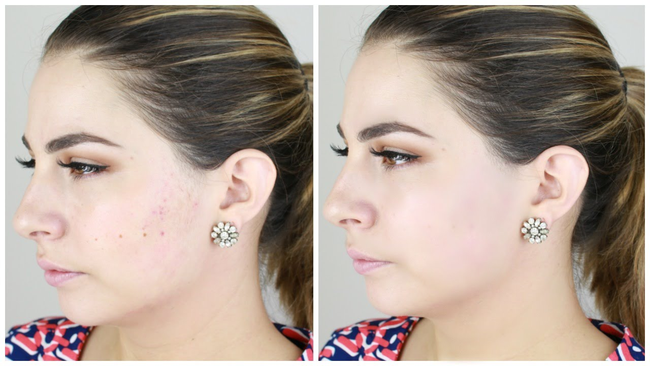 Face Makeup For Acne Scarring Dermablend Review Youtube