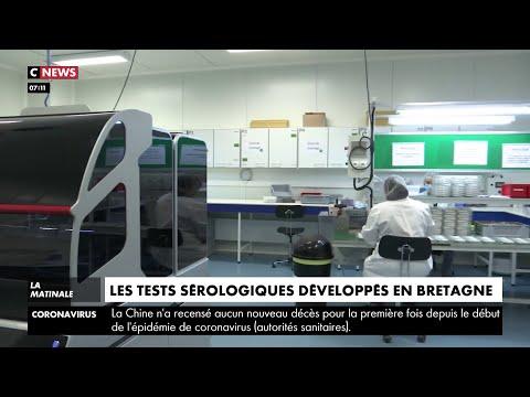 Coronavirus: des tests sérologiques développés en Bretagne