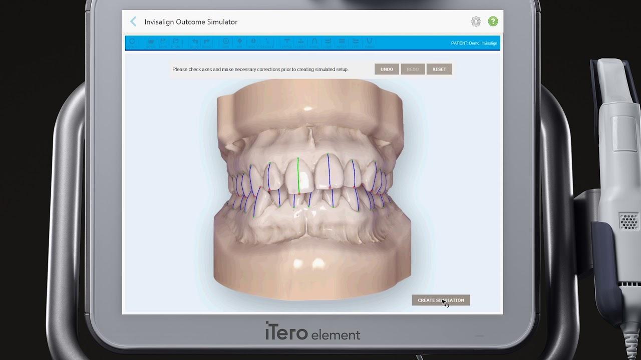 iTero® Scanner Tutorial: Invisalign Outcome Simulator