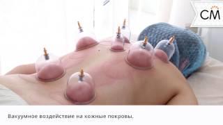 Баночный массаж   Сан Медик