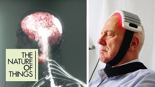 The Brains Way of Healing - Full Length Documentary   The Nature of Things   CBC