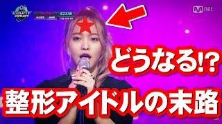 【悲報】おデコにプレートを入れたアイドルの末日ww アンシネ整形外科前 検索動画 12