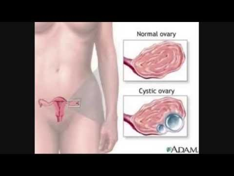 end-ovarian-cyst-pain-once-and-for-all