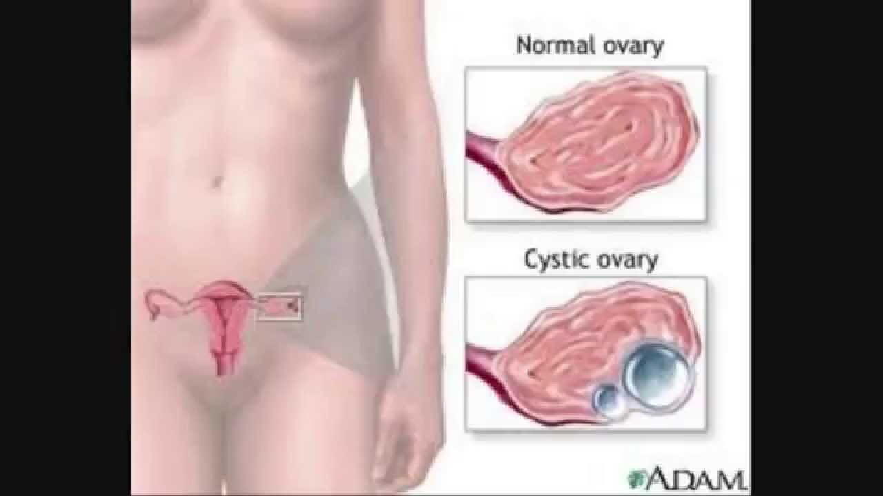 ovarian cyst no more pdf