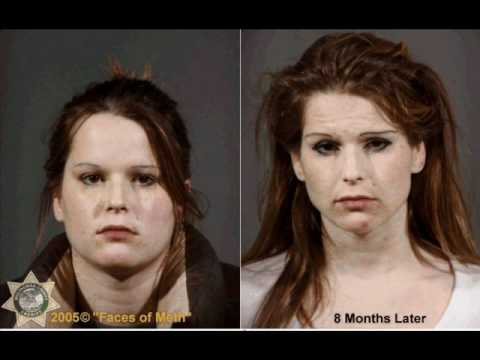 People Before & After Doing Drugs..wmv