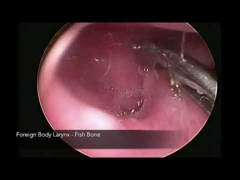 #25 Difficult Foreign Body Throat - Fish Bone (Right Pyriform Fossa)