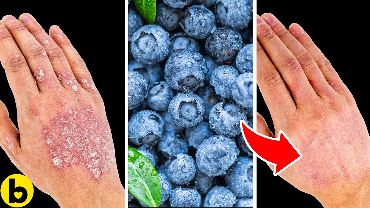 What you should Eat if you have Psoriatic Arthritis