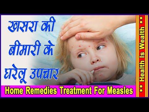 खसरा की बीमारी के घरेलु  उपचार -Measles (Khasra) Janiye Iske Lakshan aur Gharelu Nuskhe