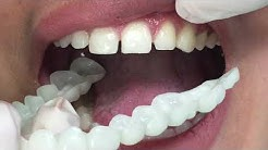 Houston Cosmetic Dentist...Close your gaps with this affordable appliance!