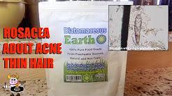 hqdefault - Diatomaceous Earth Cures Acne