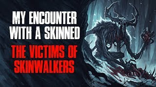 """""""My Encounter With A Skinned, The Victims Of Skinwalkers"""" Creepypasta"""