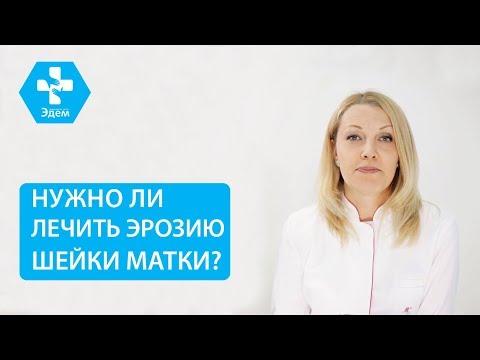 👩 Что такое эктопия шейки матки, и когда необходимо ее лечить. Эктопия шейки матки лечение. 12+