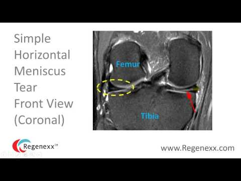 How to Read a Knee MRI for Meniscus Tears