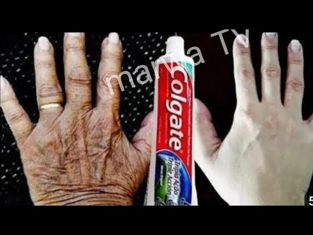 يديك تبدوا مثل العجوز بمعلقة معجون اسنان تخلصي من اسمرار و تشققات الأيدي نهائيا ومن الاستعمال الأول