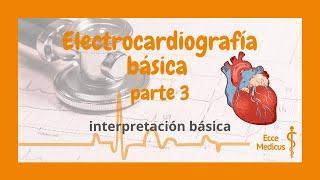 Electrocardiografía básica: 3 - interpretación general.