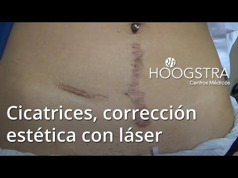 Cicatrices, corrección estética con láser (15042)