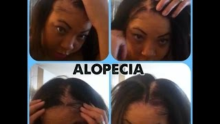 alopecia hair loss ovarian cyst sufferer no edges my story with pictures
