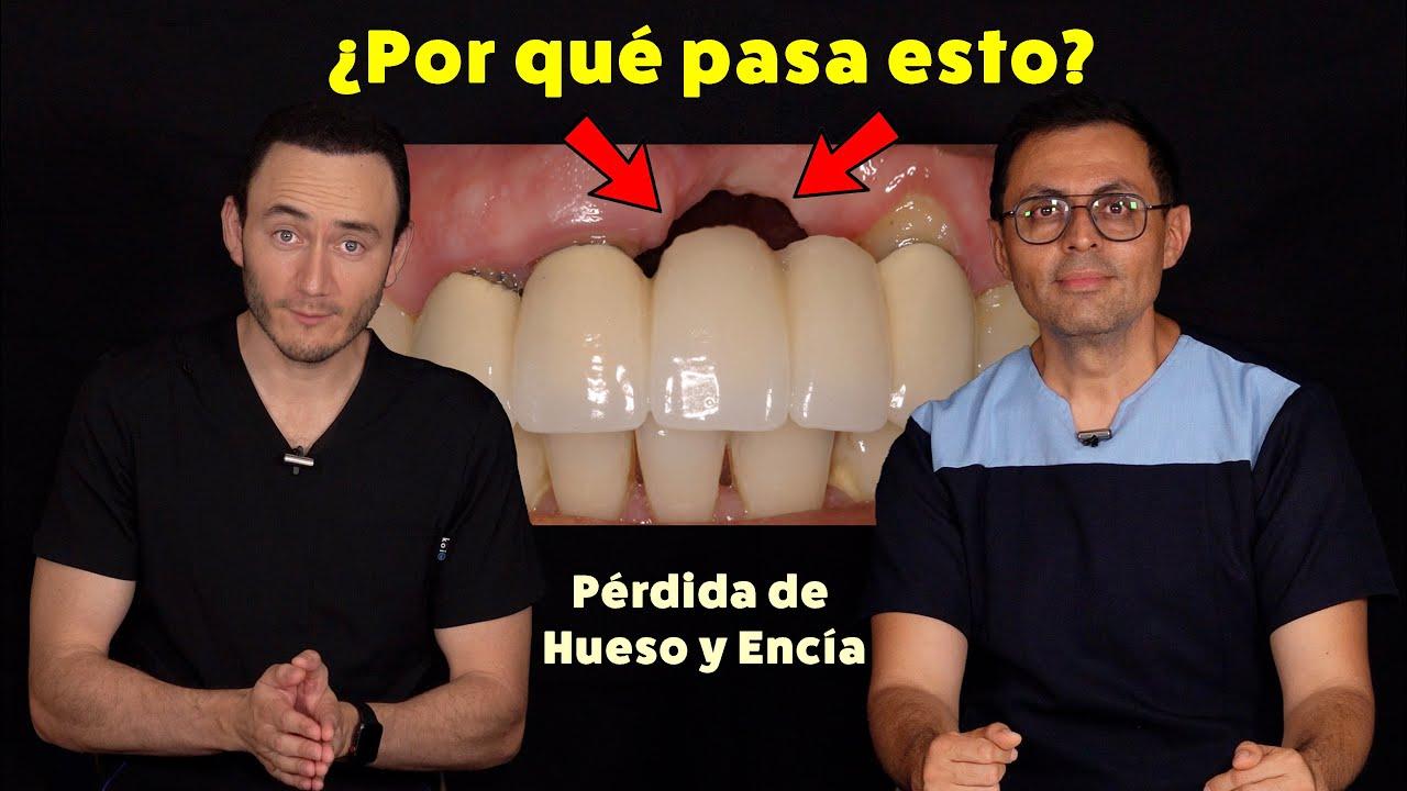 Cómo Evitar La Retracción De Encía Y Hueso Después De Una Extracción Dental Youtube