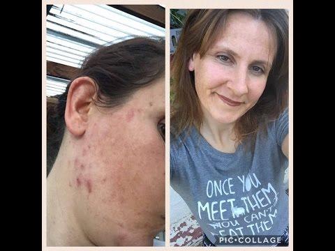 Healing Acne on 801010