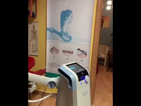 STORZ MEDICAL SHOCKWAVE THERAPY