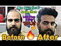 Before & After //Non_Surgical Hair Replacement System for Men change your hair In less then 1 hour