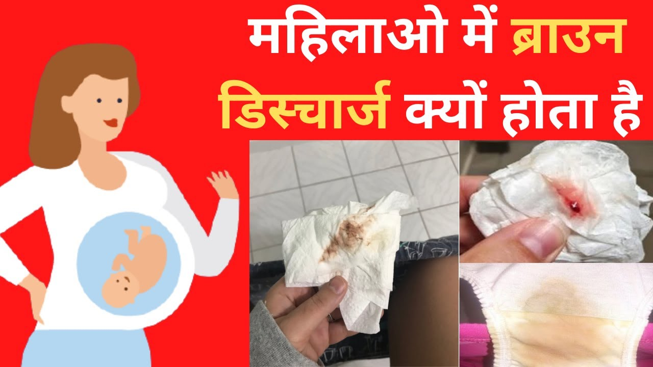अगर इस कलर का डिस्चार्ज हो रहा है तो आप प्रेग्नेंट हो चुकी है | Brown Discharge In Women | In Hindi