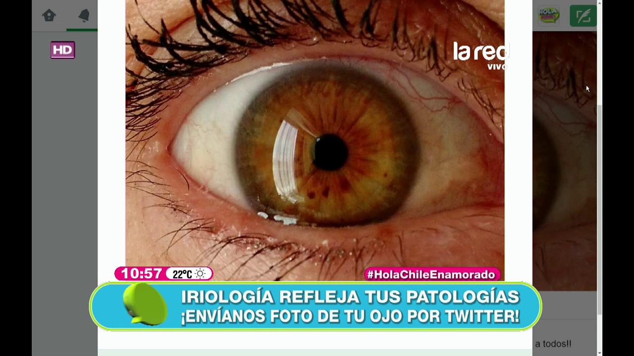 signos de parásito en el ojo