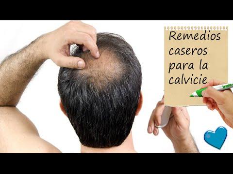 productos naturales para la caida del cabello en hombres