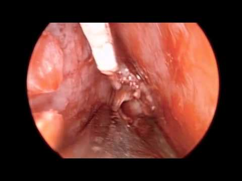 Endoscopic Repair Deviated Nasal Septum in HD 2011
