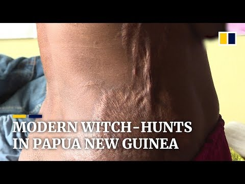 Modern witch-hunts in Papua New Guinea