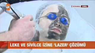 Leke ve sivilce izine lazer çözümü - atv Gün Ortası Bülteni