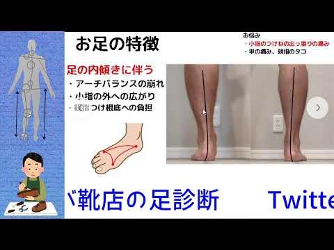 足診断今回は【小指のつけねの出っ張りの痛み】でお悩みの方