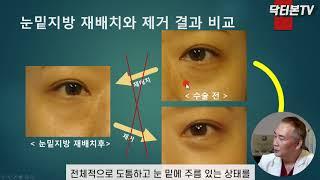 수술전후 사진으로 비교해 보는 눈밑지방 재배치와 제거 …