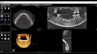 CS 3D Imaging Software Training: Mapping Mandibular Nerves