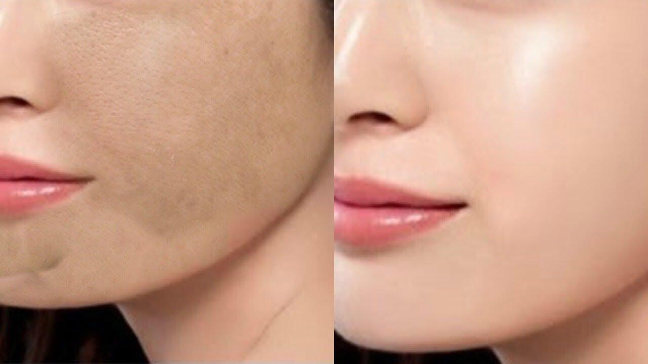 Adelgazar aclara la piel