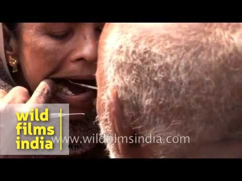Roadside Dentist performing surgery on the streets of India