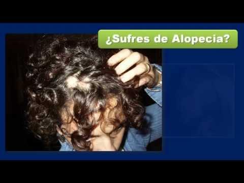 Las hormonas de la alopecia femenina