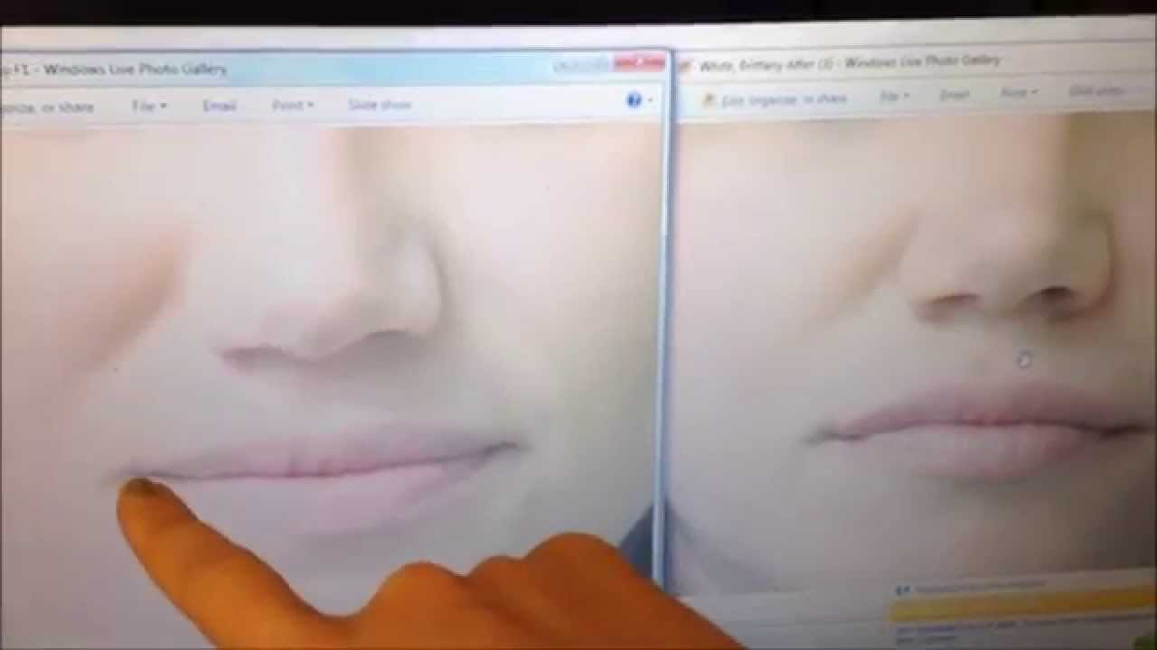 Juvederm or Restylane for Lip Enhancement Which is better?? Brittany White  NP Skin by Lovely