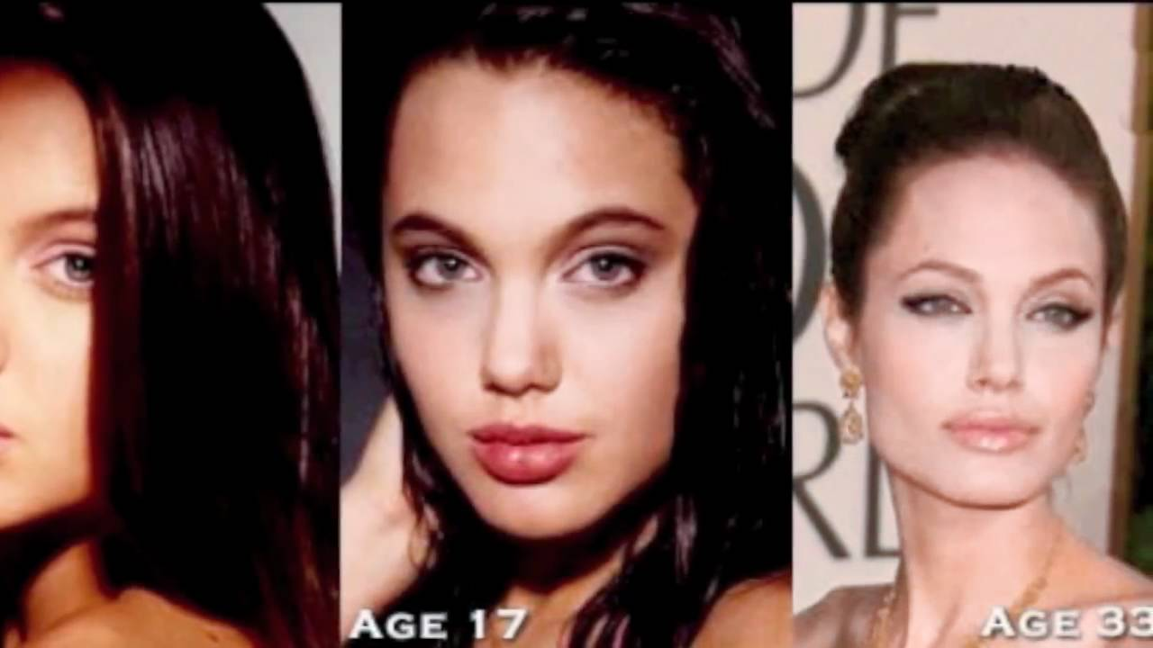 celebrity plastic surgery before and after pictures part 1 - youtube