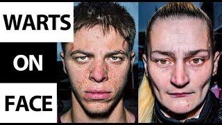 Warts on Face: How to Remove Facial Warts (Filiform Wart) Fast & Naturally at Home