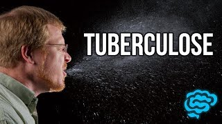 🔴 L'EXPLICATION LA PLUS CLAIRE DE TUBERCULOSE (2017) ! - DR ASTUCE