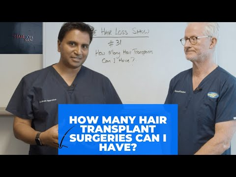Are You Having A Hair Transplant Surgery? How Many Hair Transplants Can You Have?