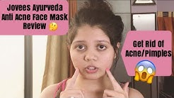 hqdefault - Jovees Anti Acne Face Pack Reviews