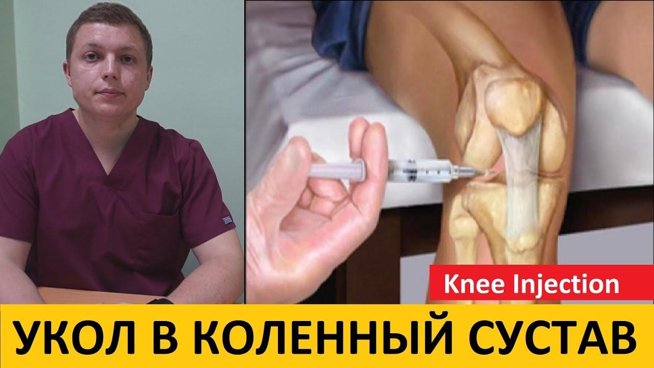 Жить здорово уколы в суставах как снять боль с сустава