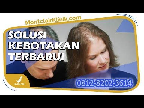 jual-montclair-hair-serum-hilangkan-penyebab-rambut-rontok-pada-wanita-di-bandung-wa-0812-8202-3614
