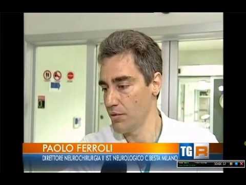 Paolo ferroli neurochirurgo dell istituto besta di milano youtube